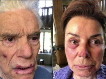 Bernard Tapie et Dominique Tapie violemment agressés.