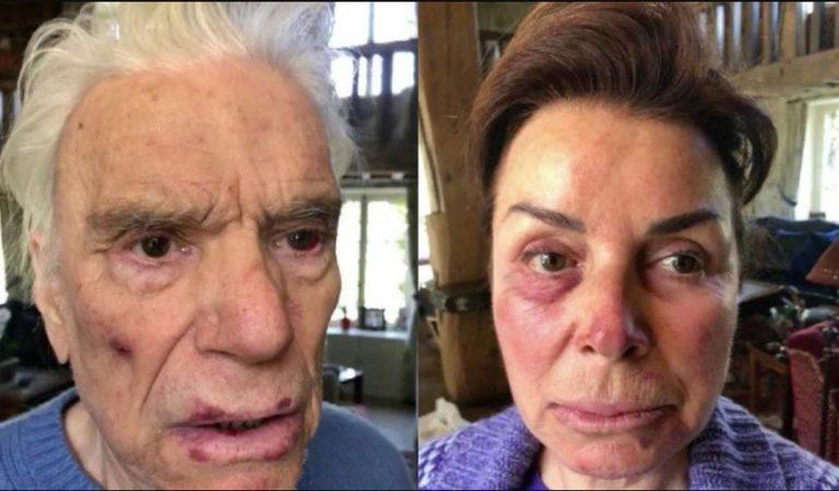 Bernard Tapie: les photos choc de l'agression!